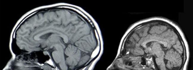 A microcefalia é uma condição neurológica que leva a um déficit no crescimento do cérebro durante a gestação. Em 90% dos casos, ela pode causar distúrbios neurológicos como a epilepsia, problemas de visão e de audição e até retardo mental. A imagem mostra duas tomografias da cabeça lado a lado - a da esquerda é considerada normal e a esquerda é de um paciente com microcefalia. (Imagem: Wikimedia Commons)