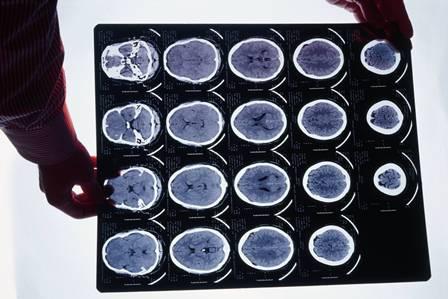 neuroimagem2.jpg