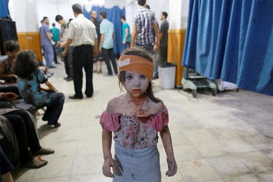 Garota síria ferida em bombardeio das forças do governo sírio recebe tratamento em um hospital improvisado na cidade de Douma, controlada pelos rebeldes, na Síria (Crédito foto: Abd Doumany/Agence France Presse).
