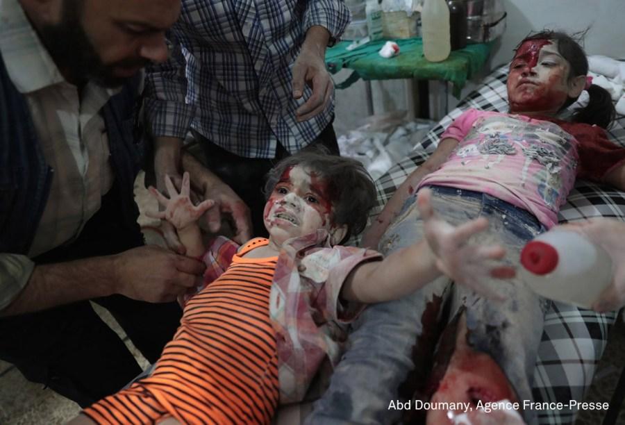 """Garota síria recebe tratamento em um hospital em Damasco, na Síria, em setembro de 2016. Ela foi ferida após um ataque aéreo das forças do governo no leste da cidade, em uma região que é controlada pelos rebeldes. <div id=""""desc-default""""><span>(foto: Abd Doumany/World Press Photo 2017)</span></div>"""
