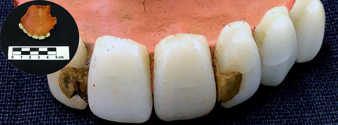 Close de uma dentadura.